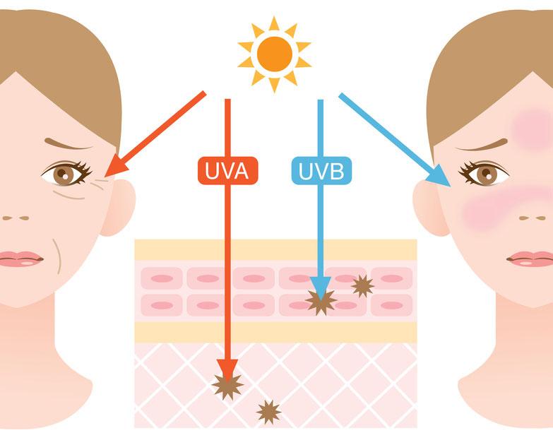 紫外線による肌へのダメージ 大